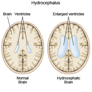 Normal Brain and Brain with Hydrocephalus